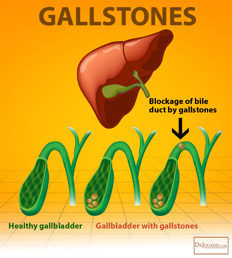 How to Beat GallStones Naturally - DrJockers com