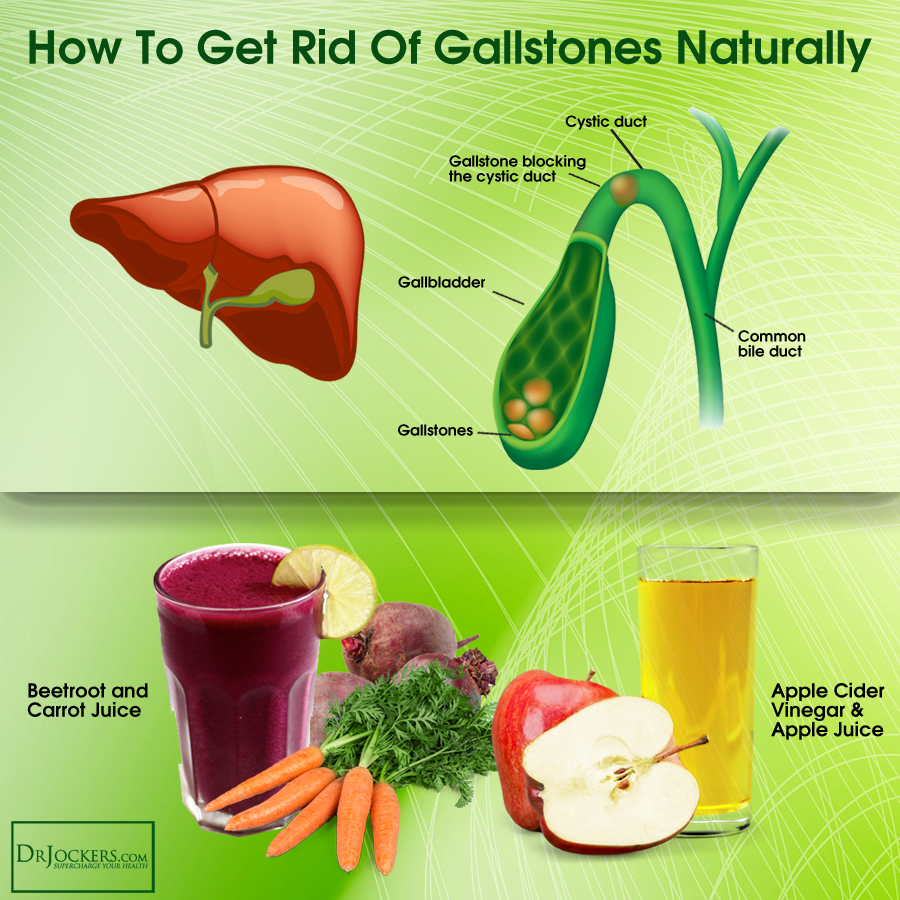 Whether to remove the gallbladder 3