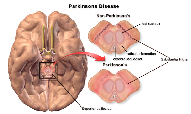 parkinson's disease, 17 Action Steps to Improve Parkinson's Disease