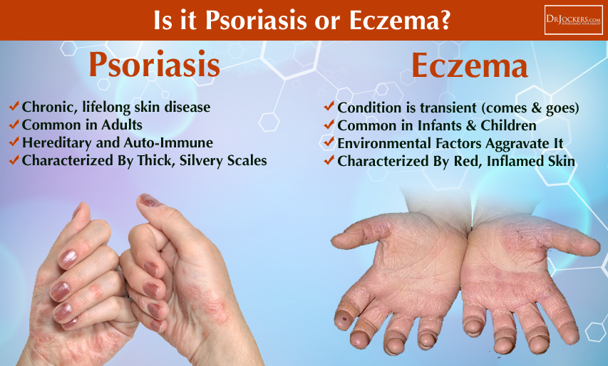 eczema, 18 Ways to Beat Eczema, Acne and Psoriasis