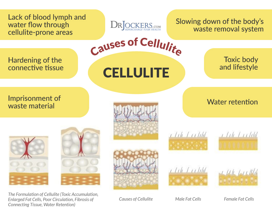 Cellulite, Top 10 Strategies to Get Rid of Cellulite Naturally