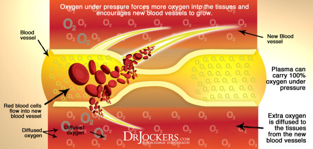 hyperbaric oxygen, The Health Benefits of HyperBaric Oxygen Therapy