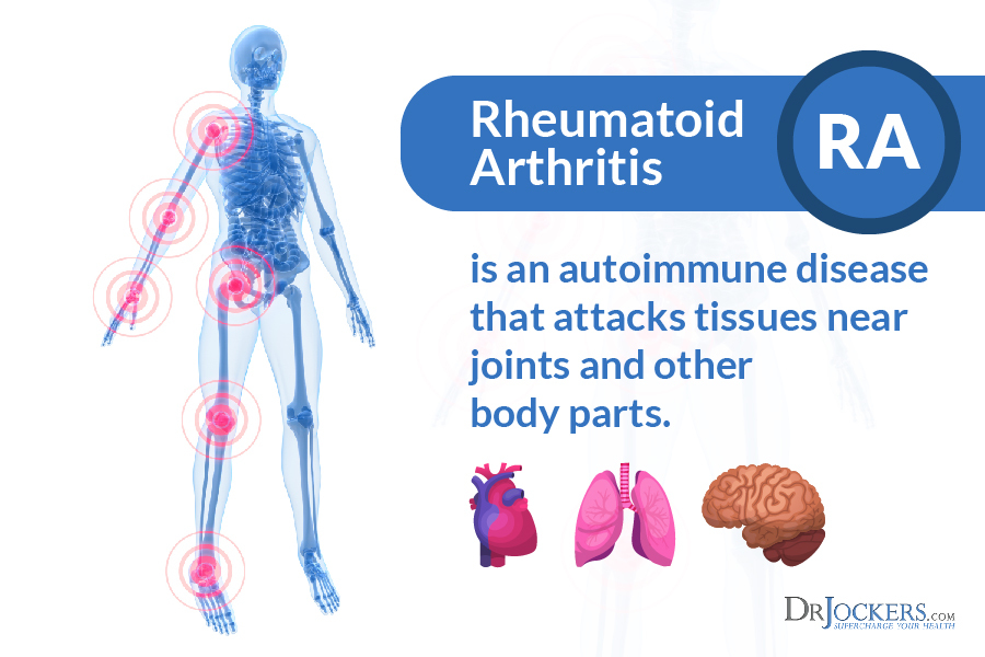 Rheumatoid Arthritis, 20 Ways to Beat Rheumatoid Arthritis Naturally