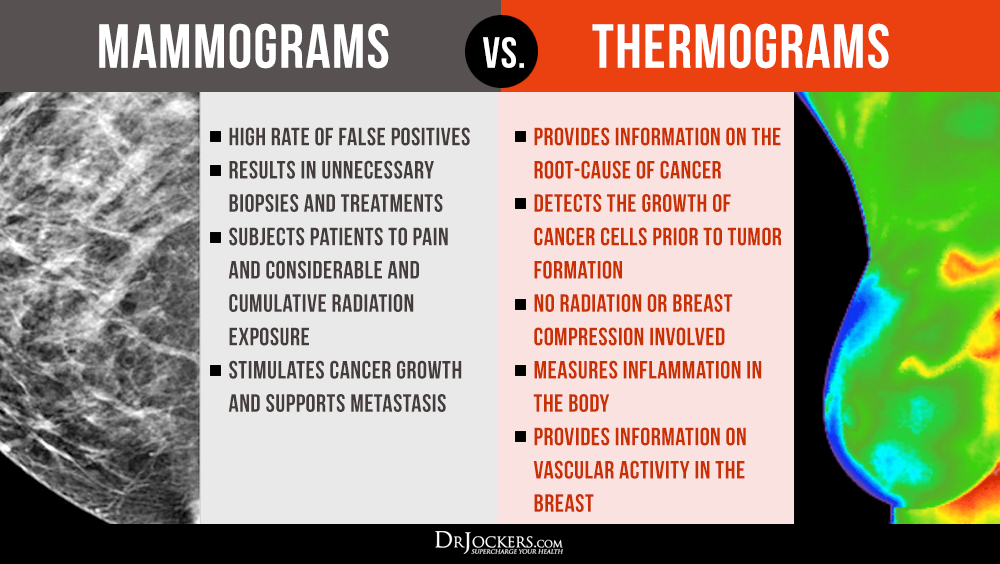 Mammograms, Mammograms and Your Risk of Cancer