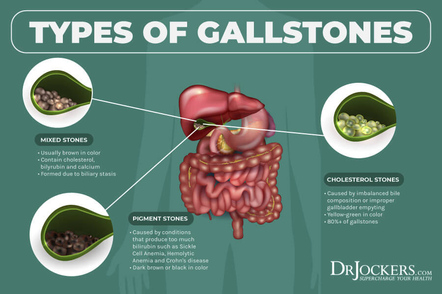 gallstones, Beat Gallstones Naturally