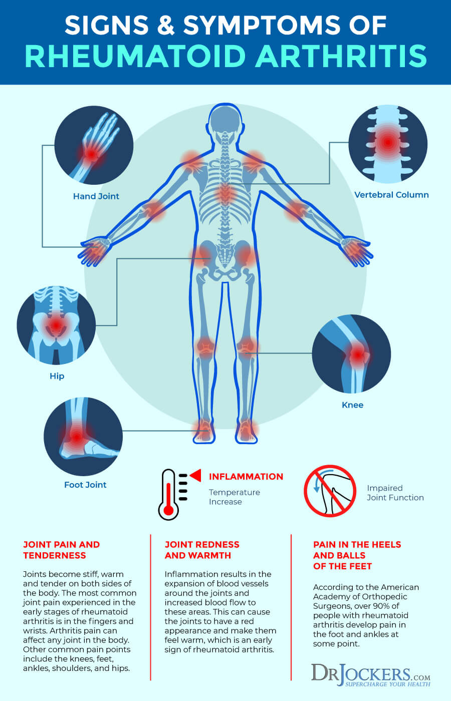 Rheumatoid Arthritis Symptoms Causes And Natural Support Strategies