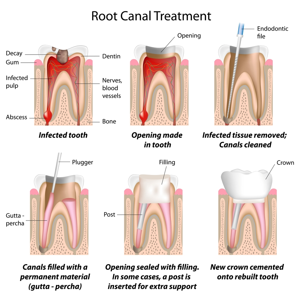 the real dangers of root canals and oral health tips