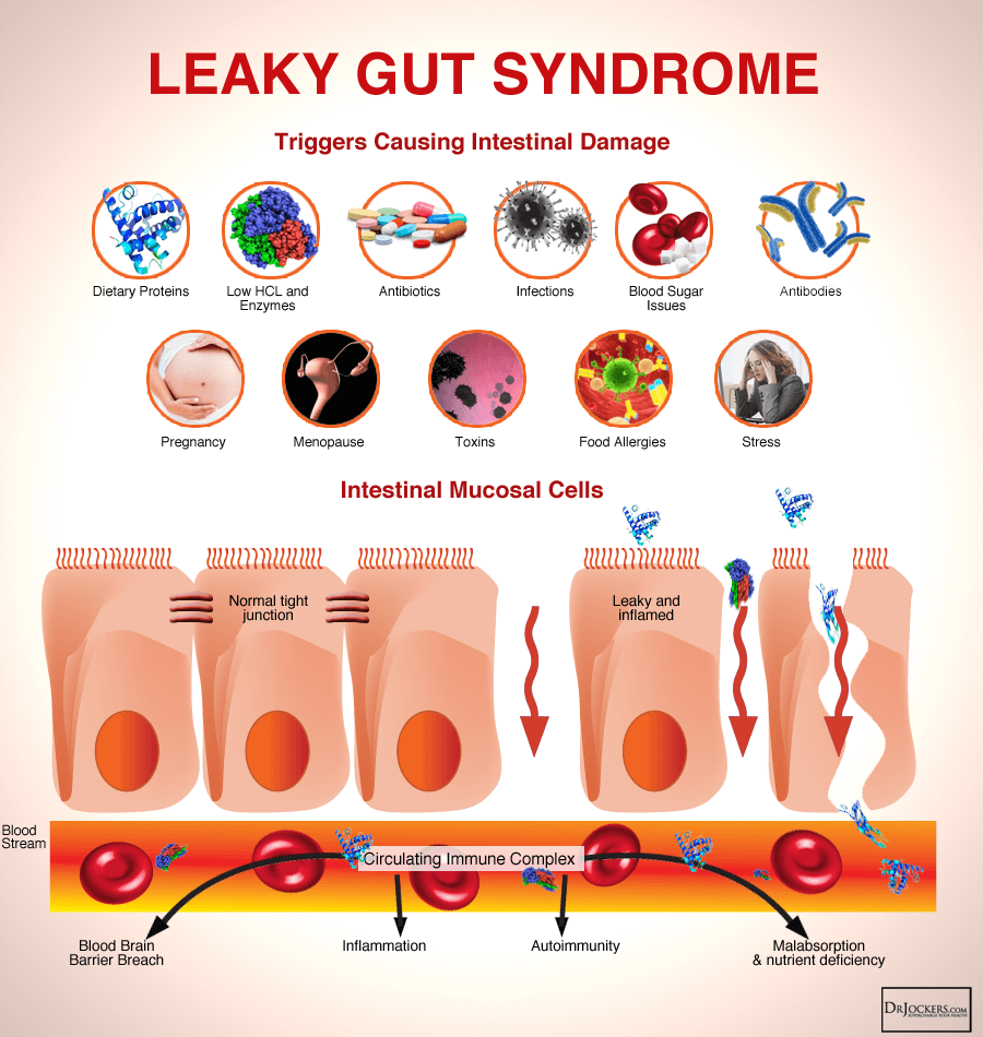gut syndrome, What is Leaky Gut Syndrome and How Does it Impact Our Health?