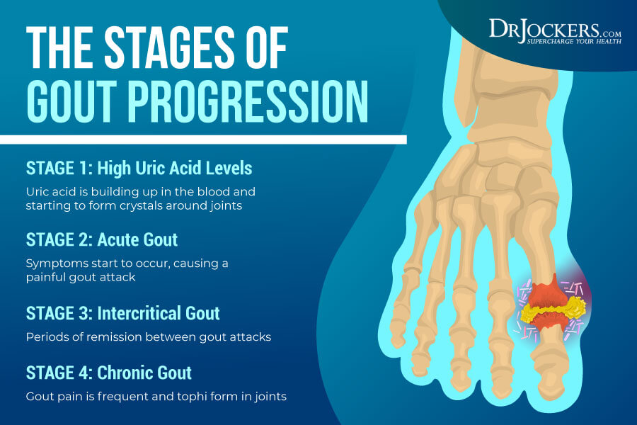 Gout, Gout:  Symptoms, Causes and Natural Support Strategies