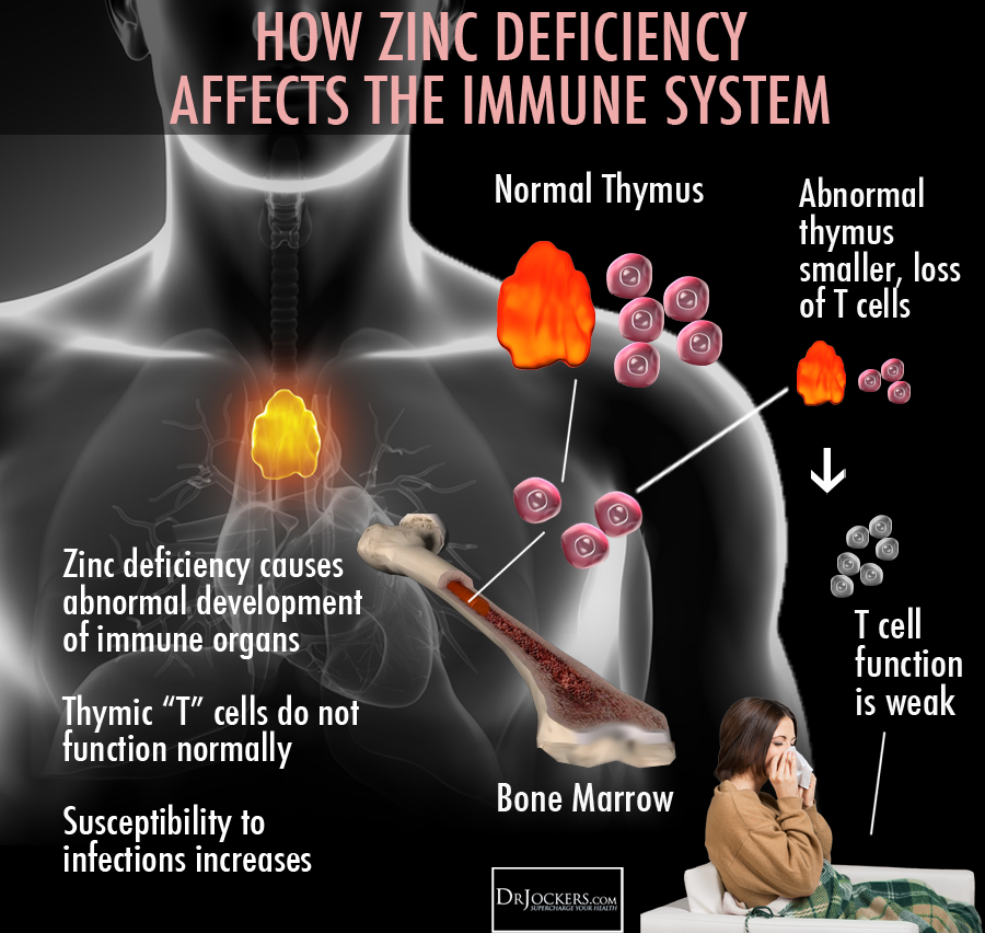 Zinc_Deficiency