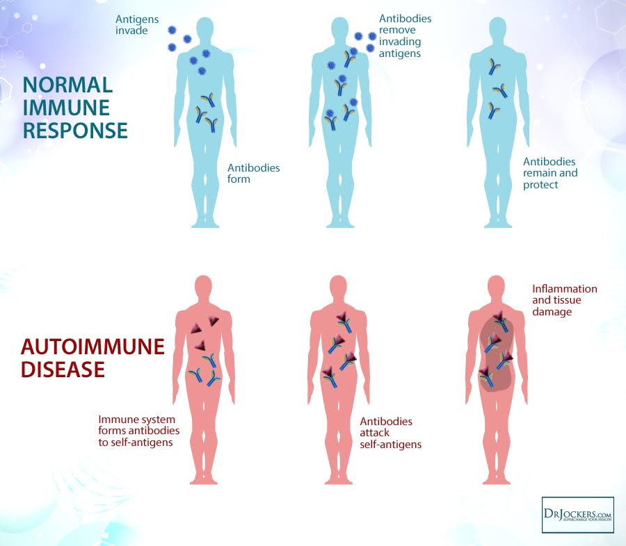 , Auto-Immune Reactivity Panel