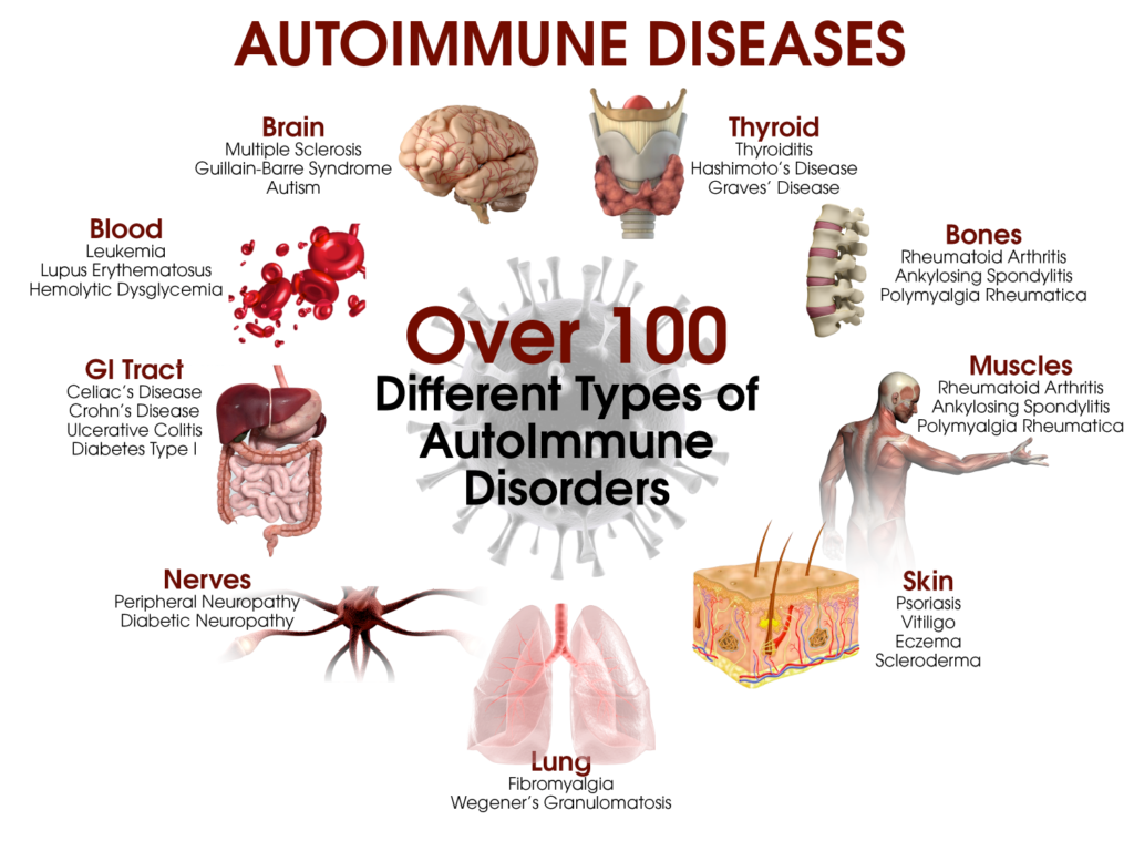 How to Prevent Autoimmune Diseases