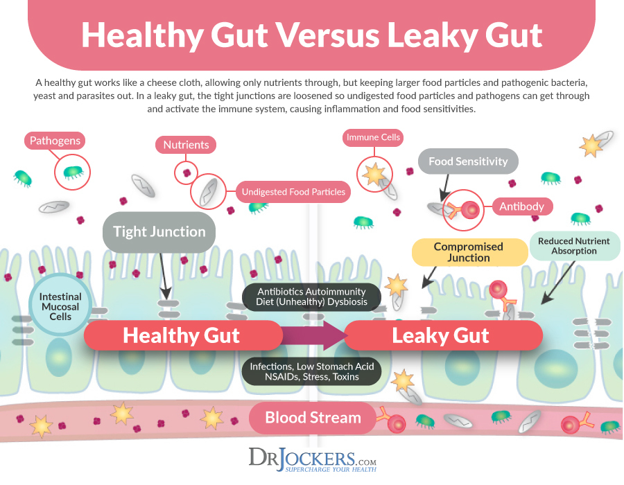 leaky gut, Top 10 Foods to Heal Leaky Gut Syndrome