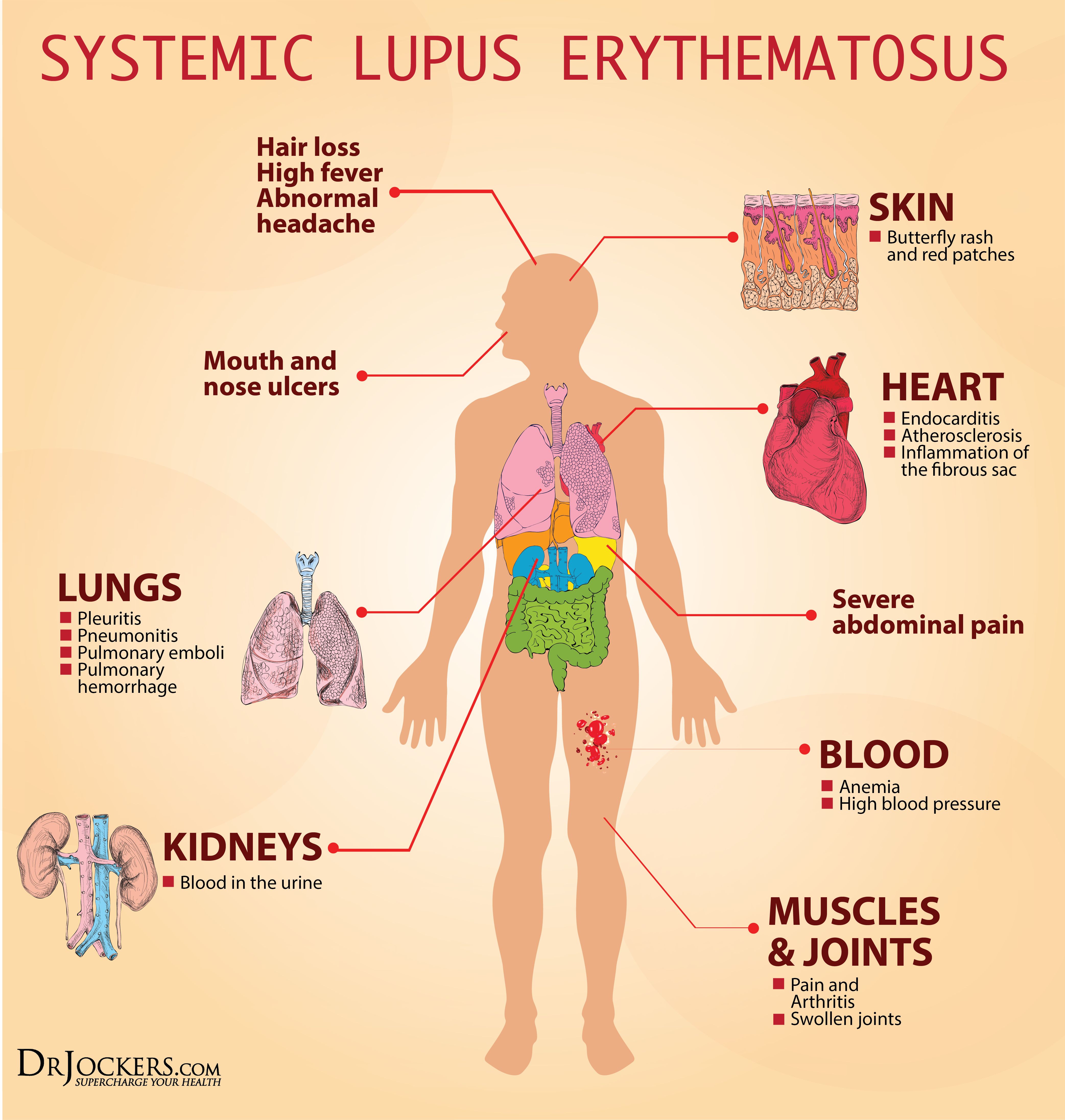 19 Ways to Heal Systemic Lupus Naturally - DrJockers com
