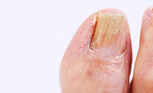 Nail, 10 Nail Problems You Need to Know About