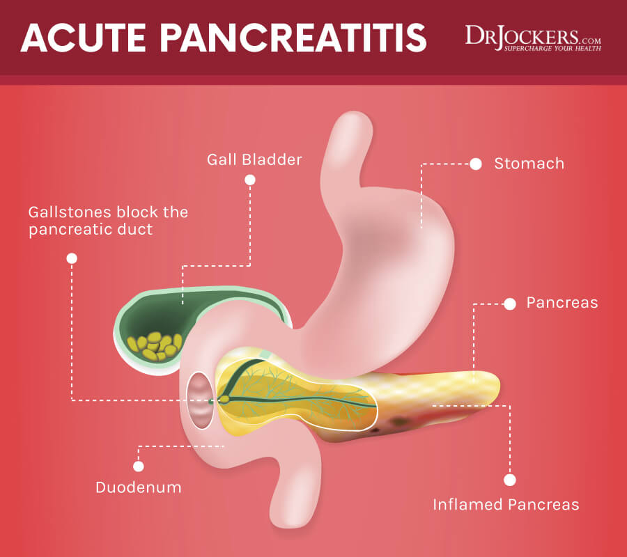 7 Strategies To Heal Pancreatitis Naturally Drjockers