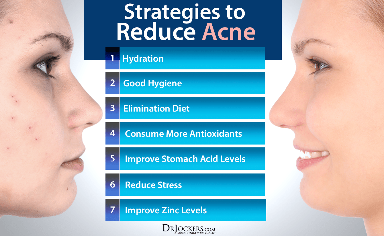 10 things acne means about your health - drjockers