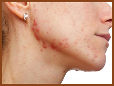 acne, 10 Things Acne Means About Your Health
