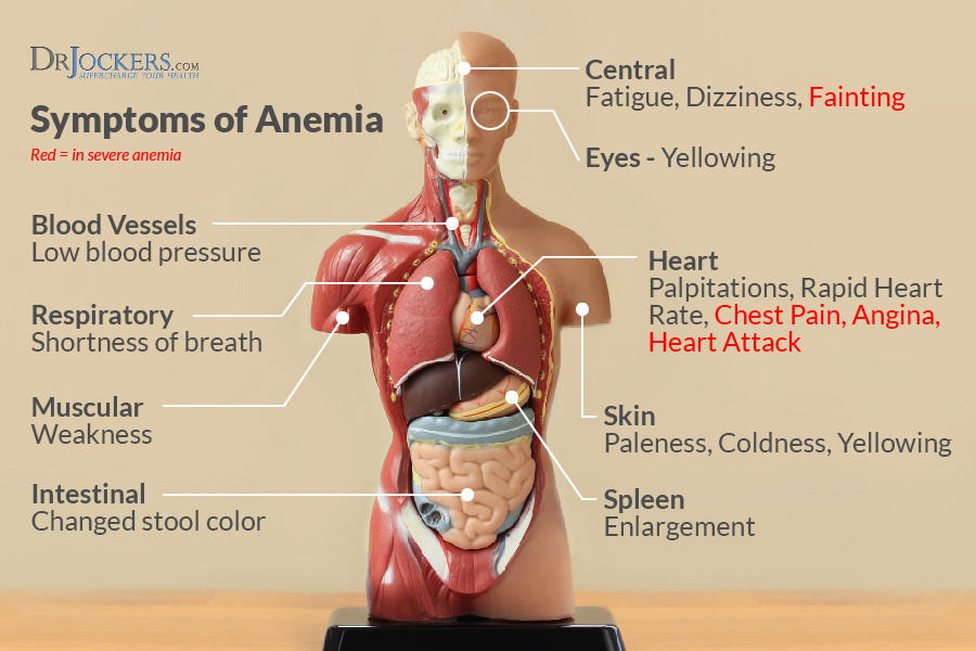 13 Ways to Heal Anemia Naturally - DrJockers.com