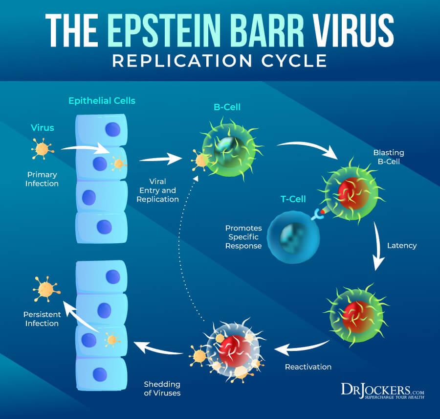 Epstein Barr, Epstein Barr Virus:  Symptoms, Causes and Support Strategies