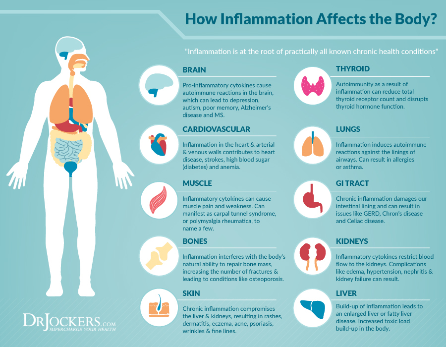 Top 7 Strategies To Heal Chronic Inflammation Drjockers Com