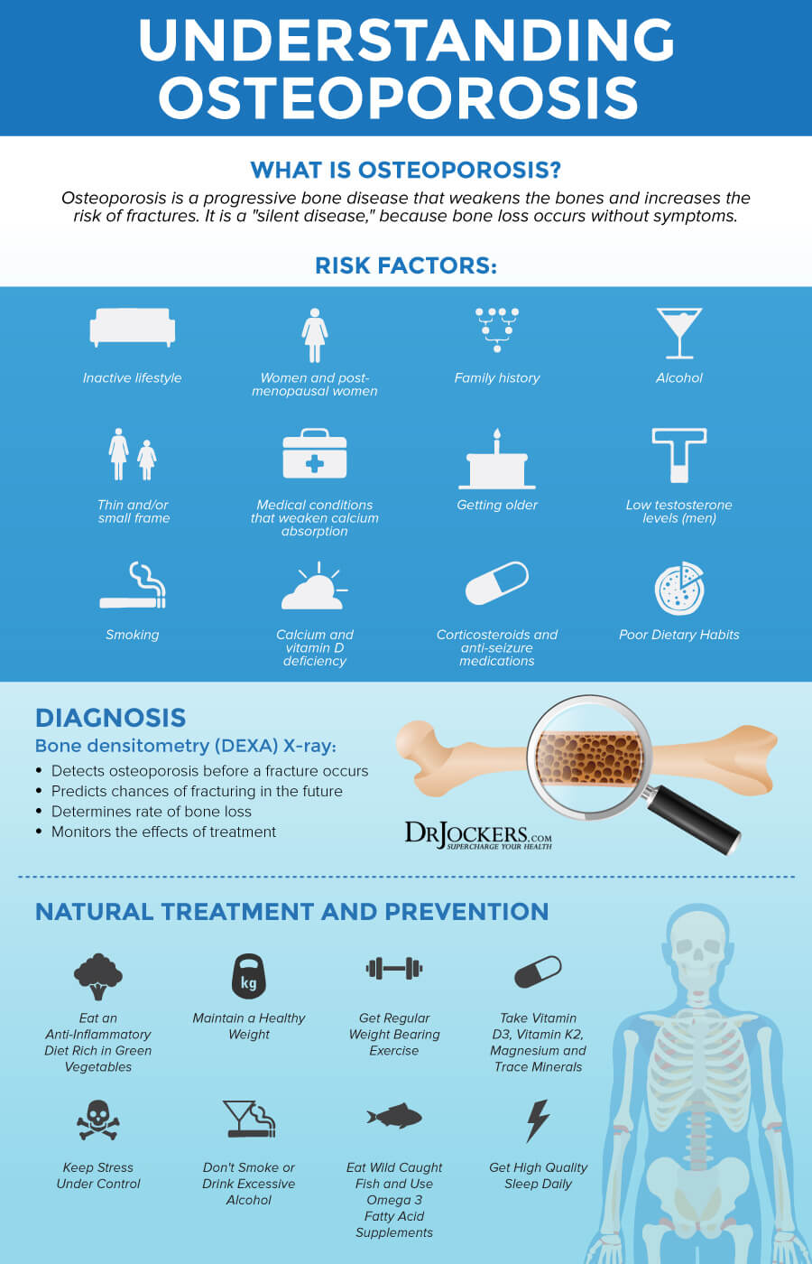 Osteoporosis, Osteoporosis: Symptoms, Causes and Natural Support Strategies