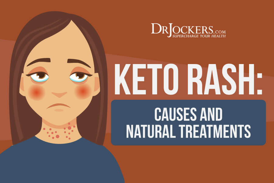 Keto Rash, Keto Rash: Causes and Natural Treatments