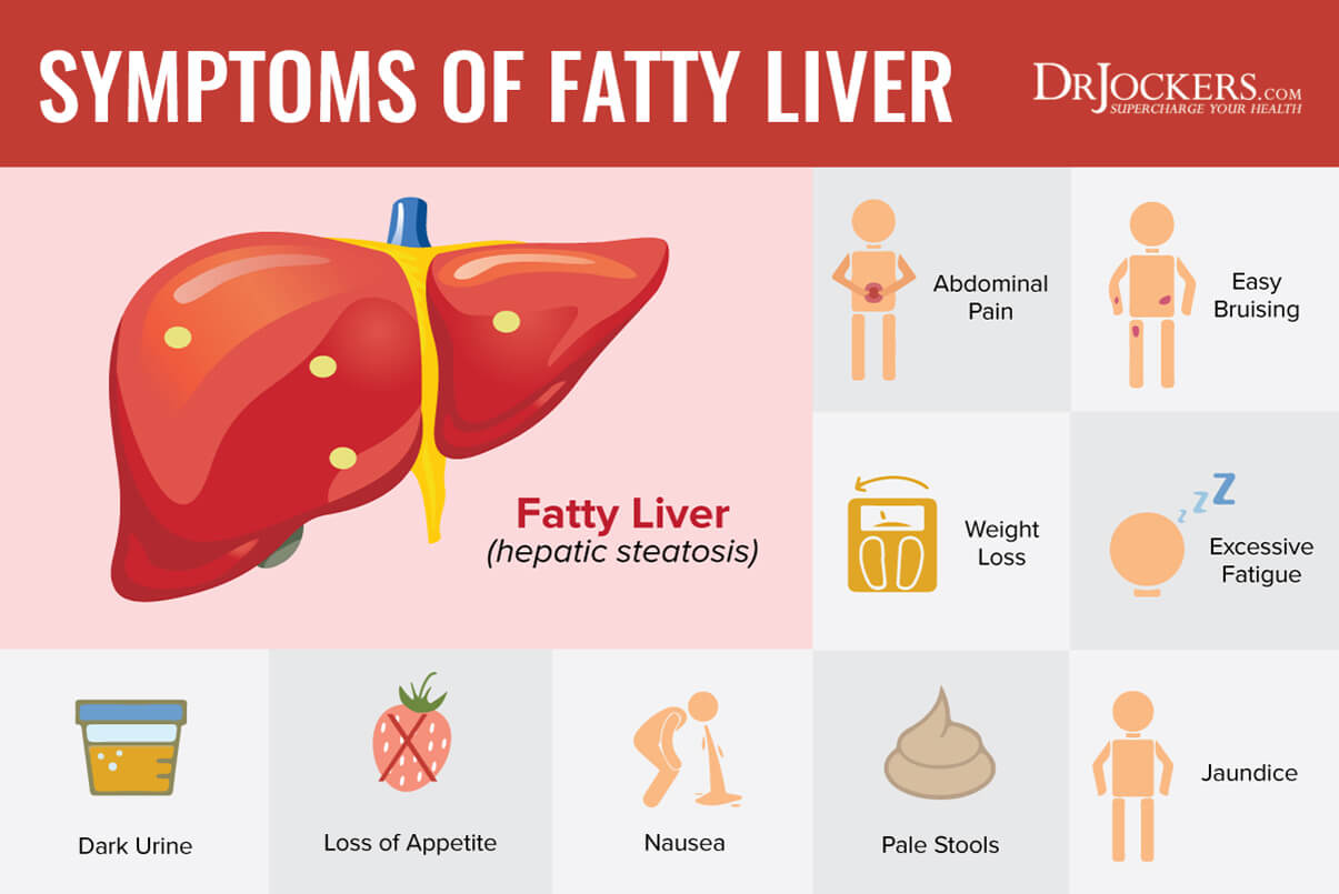 fatty liver, Fatty Liver:  Symptoms, Causes and Natural Support Strategies