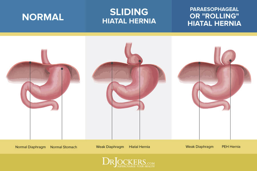 hiatal hernia, Hiatal Hernia: What it is and Natural Treatments