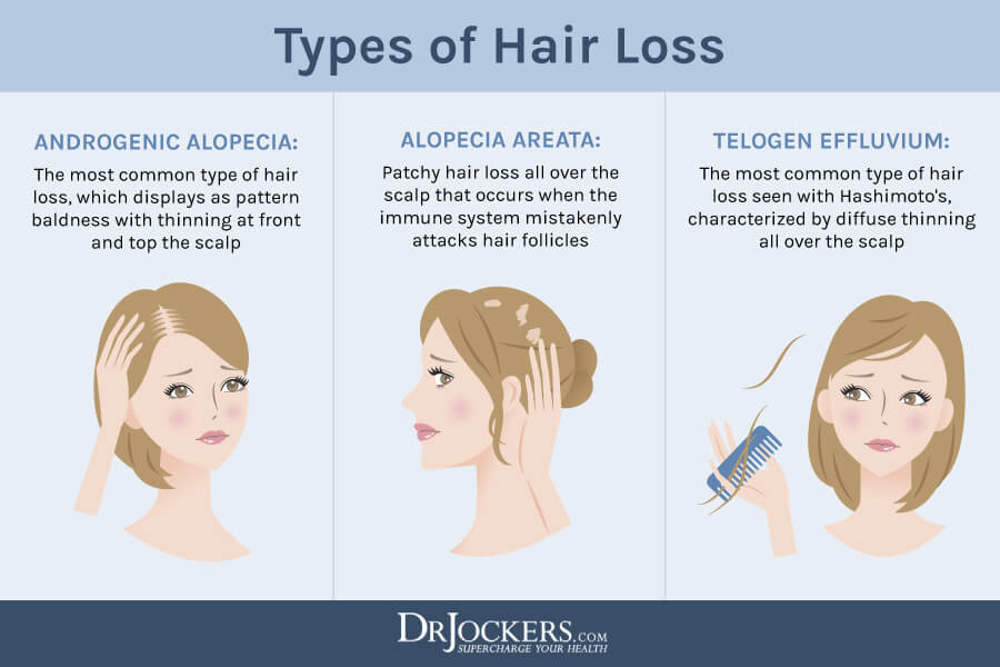 hair loss, Hair Loss on Keto: Causes and 16 Tips to Prevent It