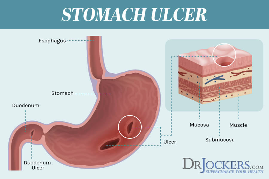 stomach ulcers, Stomach Ulcers: Causes and Natural Support Strategies