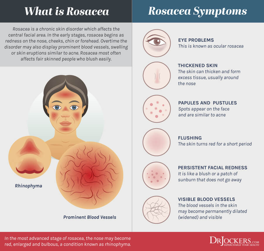 rosacea, Rosacea:  Causes and a 3 Step Process to Heal