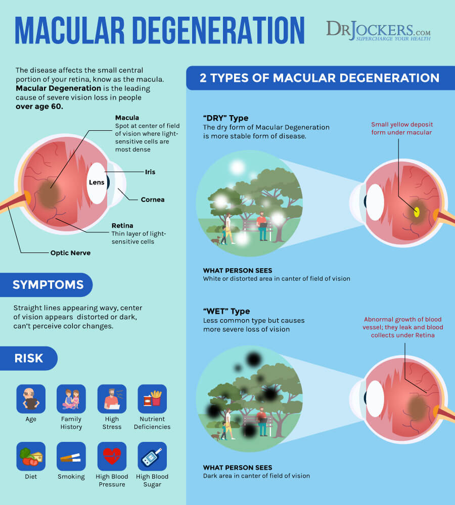 macular degeneration, Macular Degeneration:  Causes, Symptoms & Natural Support Strategies