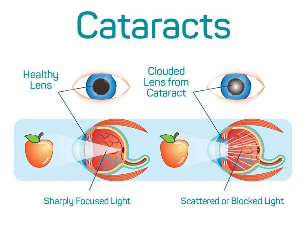 Cataracts, Cataracts:  Causes, Symptoms & Solutions
