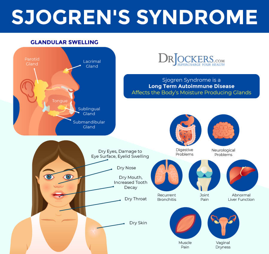 Sjogren's Syndrome, Sjogren's Syndrome: Symptoms, Causes, and Natural Support Strategies