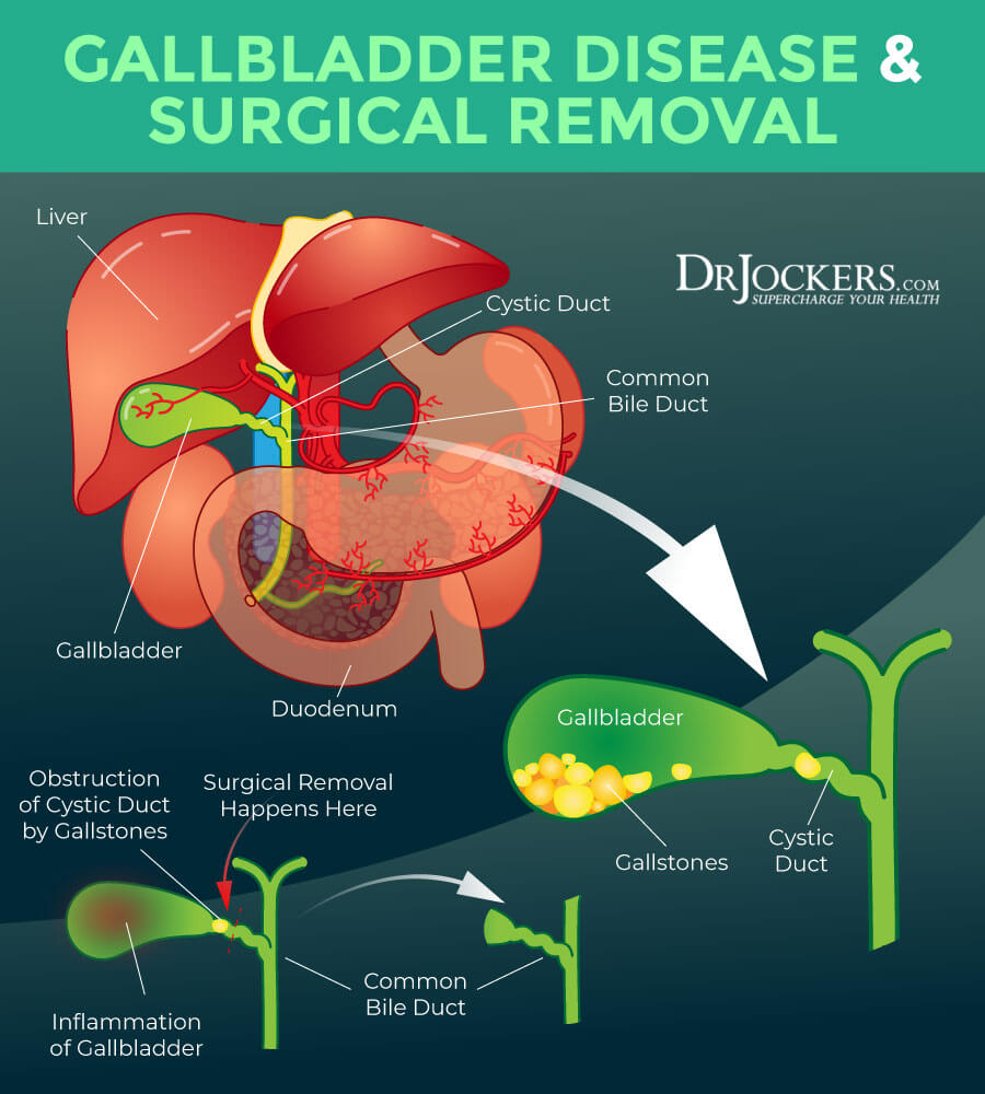 no gallbladder, No Gallbladder: Strategies to Improve Digestive Health After Surgery