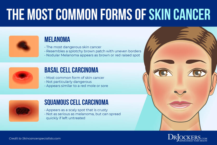 skin cancer, Skin Cancer: Symptoms, Causes, and Natural Support Strategies