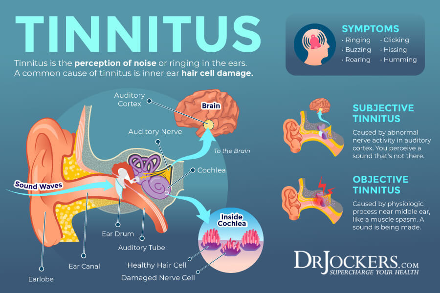 Tinnitus, Tinnitus: Symptoms, Causes and Natural Support Strategies