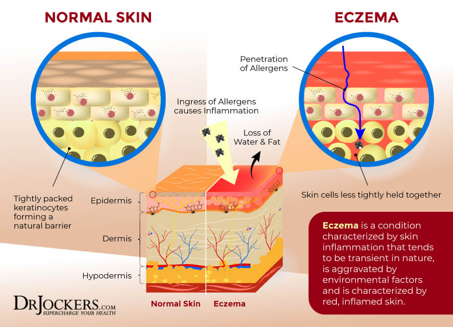 eczema, Eczema: Symptoms, Causes & Support Strategies