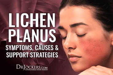 lichen, Lichen Planus: Symptoms, Causes & Support Strategies