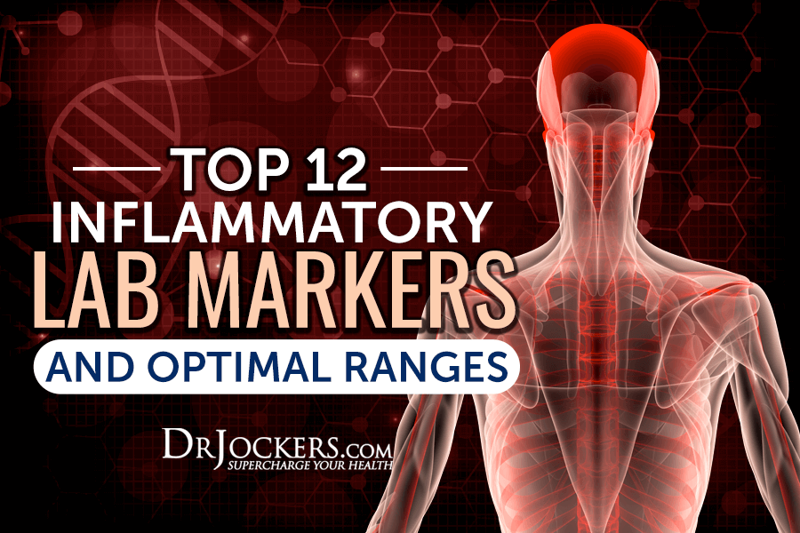 inflammatory, Top 12 Inflammatory Lab Markers and Optimal Ranges