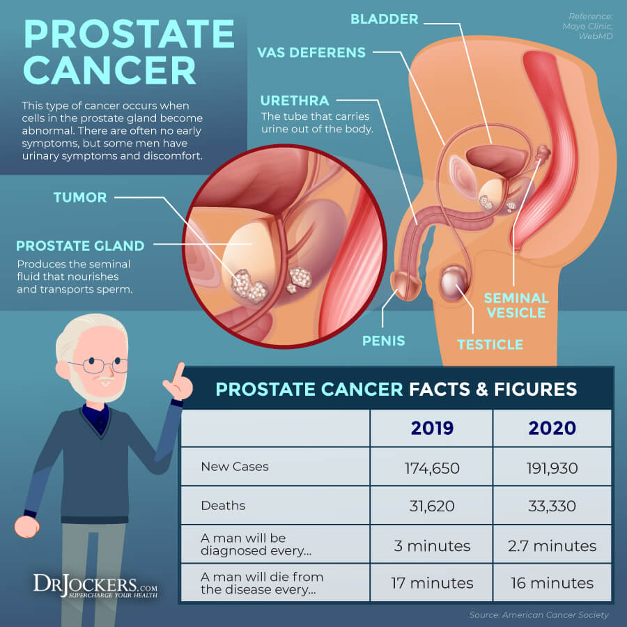 prostate cancer, Prostate Cancer: Symptoms, Causes, and Support Strategies