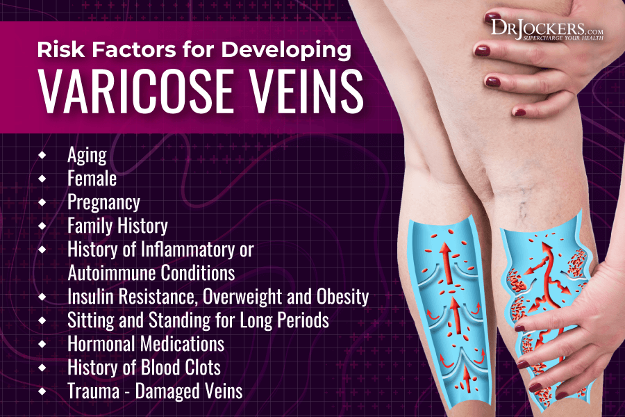 varicose veins, Varicose Veins: Symptoms, Causes, and Natural Support Strategies
