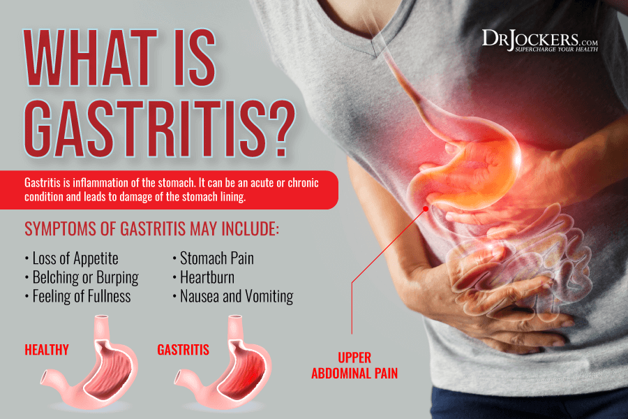 gastritis, Gastritis: Symptoms, Causes, and Support Strategies