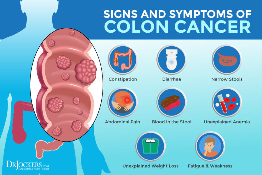colon cancer, Colon Cancer: Symptoms, Causes, and Support Strategies