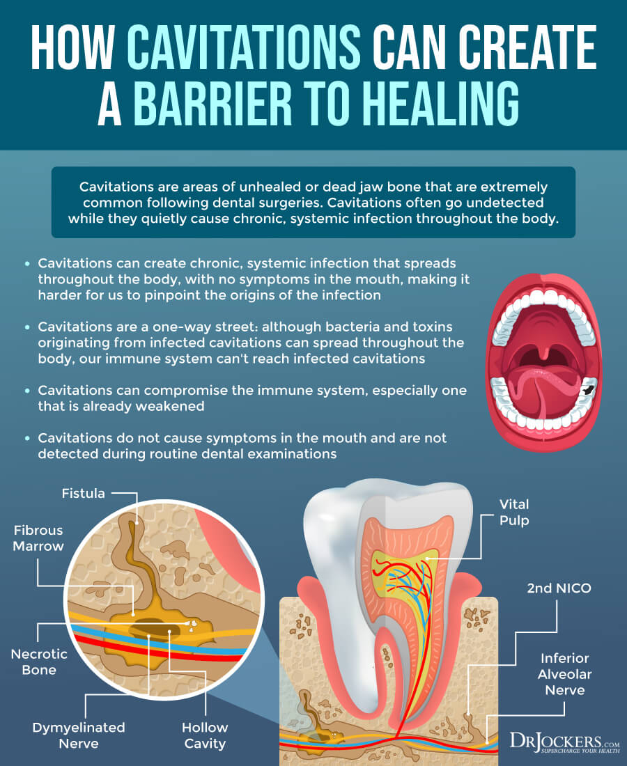 dental, Holistic Dental Care and the Oral Microbiome