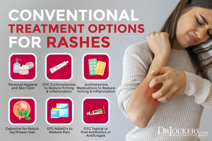 rashes, Skin Rashes: Symptoms, Causes and Natural Support Strategies