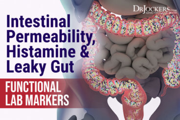 intestinal permeability, Intestinal Permeability, Histamine, and Leaky Gut Functional Lab Markers